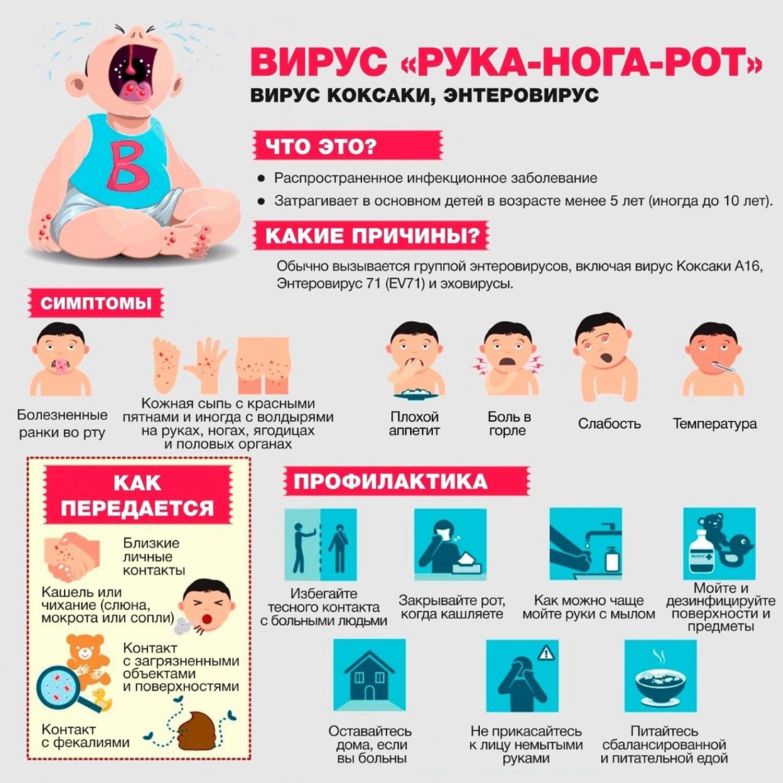 Вирус Коксаки - признаки, профилактика, лечение